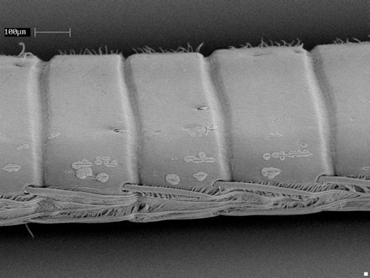 Coral sand particles (prawn antenna) - SEM