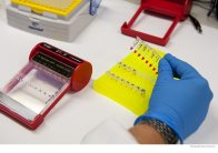 DNA being analysed in laboratory