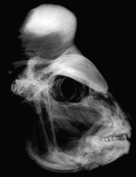 X-ray image of the head of a Snapper