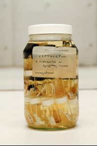 A jar of leptocephali