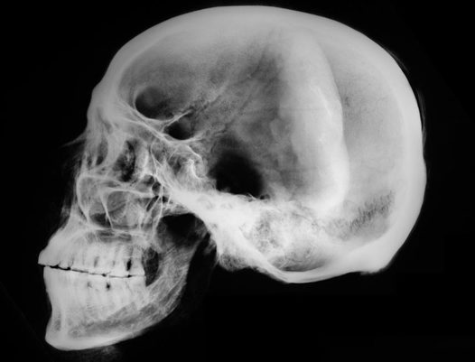 X-ray of ancient Egyptian mummy skull