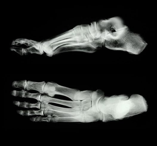 X-rays of ancient Egyptian human mummy foot