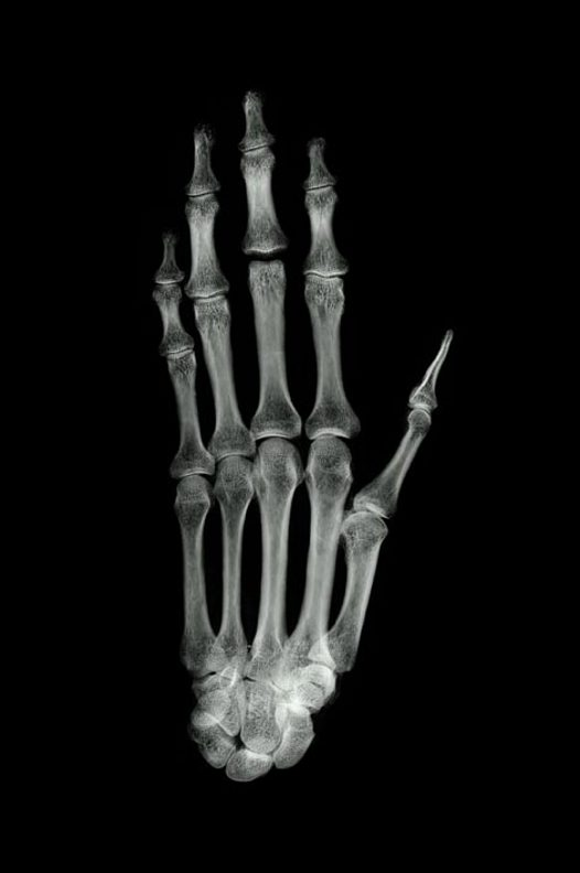 Ancient Egyptian mummy hand X-ray