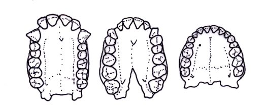 Dental arcade of an ape, Australopithecus africanus and a modern human