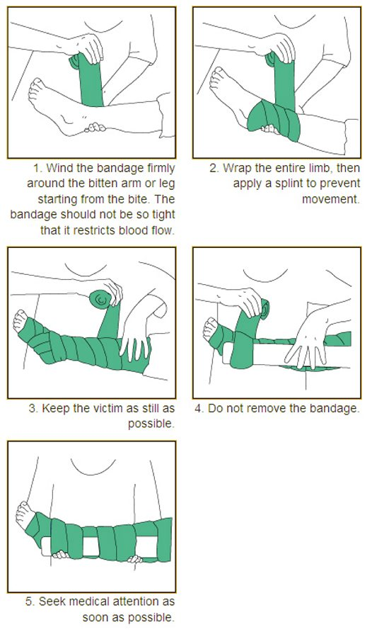 Applying a pressure immobilisation bandage