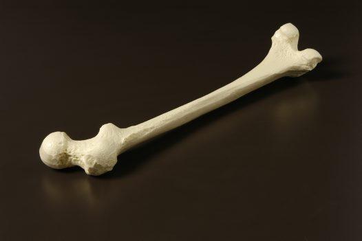 Upper Leg Bone Of A Modern Human Australian Museum