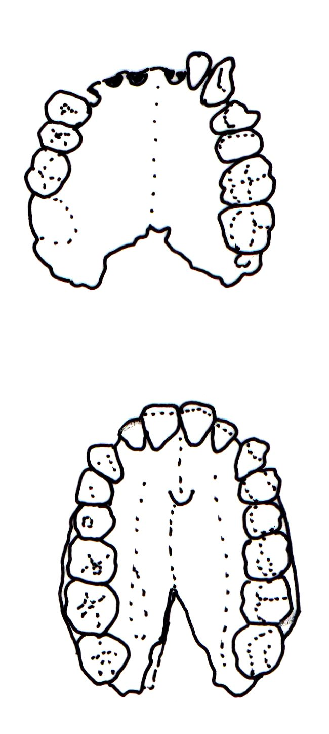 Dental arcade of an early hominids