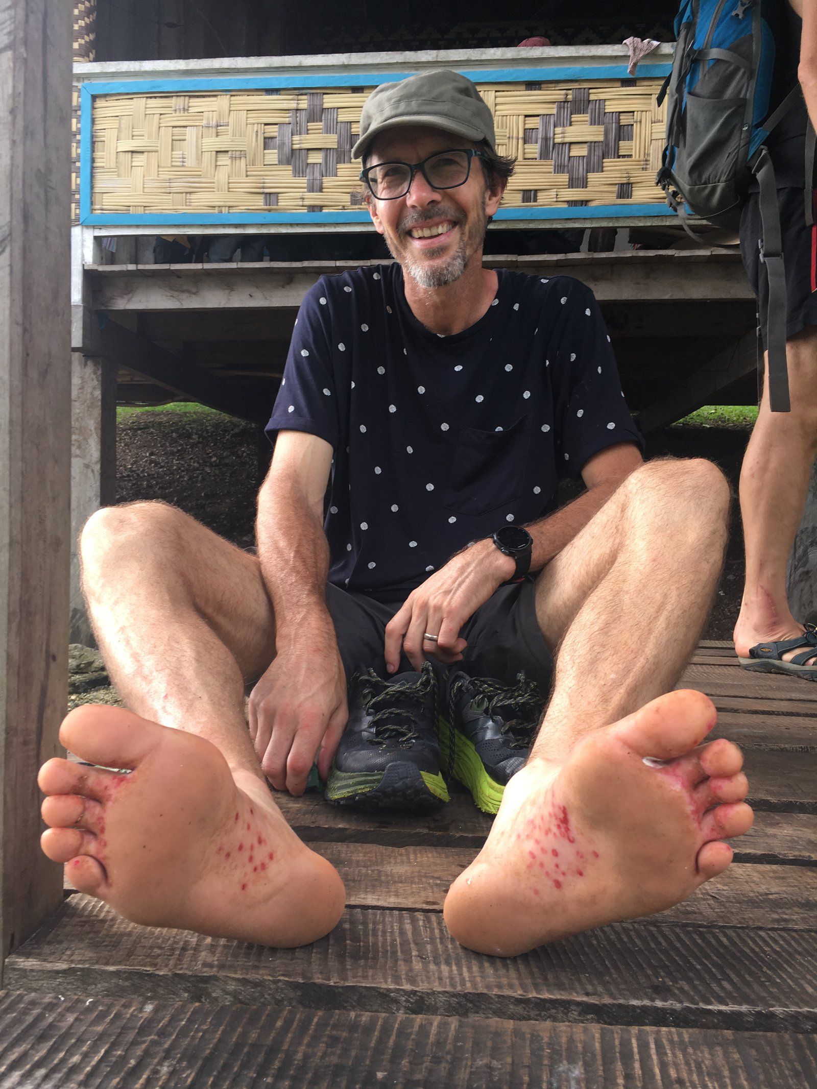 Dr Andrew Mitchell with tropical foot root, Malaita.