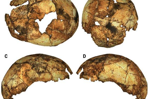 The Homo erectus neurocranium