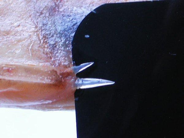 Platycephalus richardsoni
