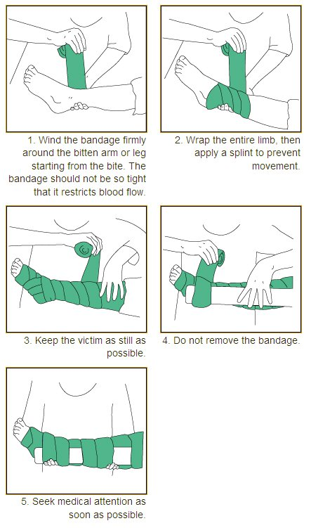 Applying pressure bandage