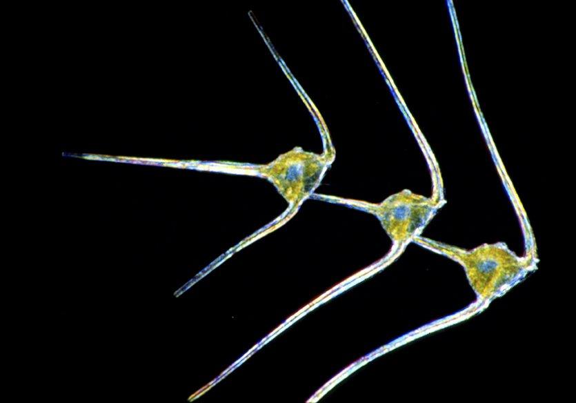 Ceratium-dinoflagellates