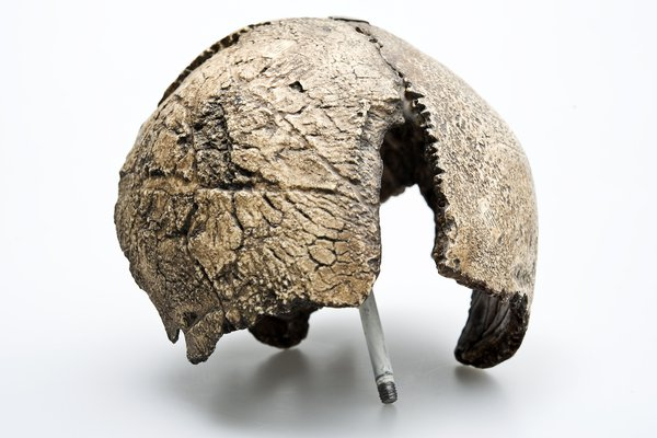 Swanscombe skull