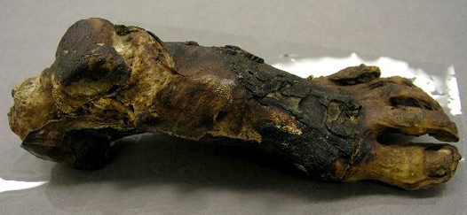 Mummified foot
