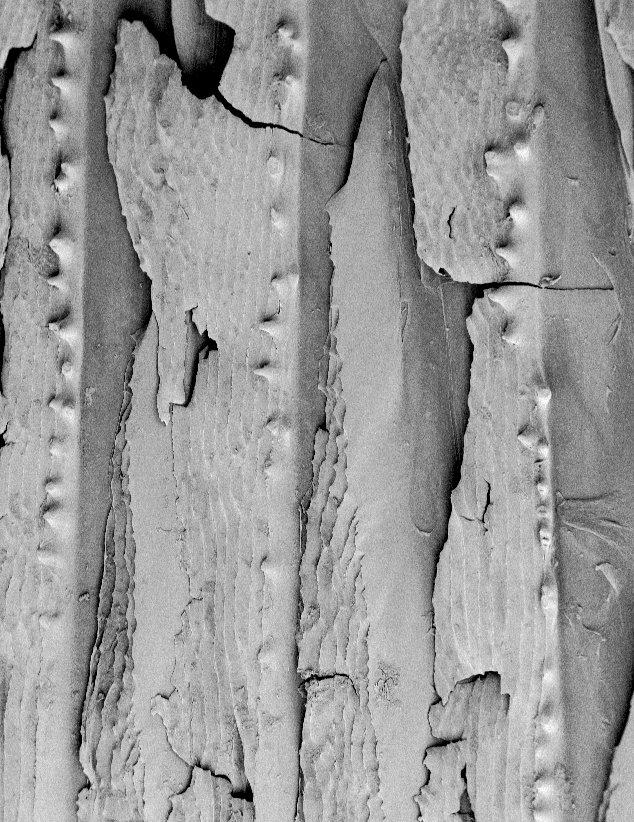Scales of a Thorny Tinselfish, <i>Grammicolepis brachiusculus</i>