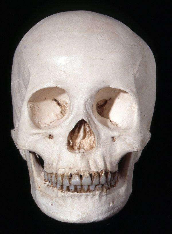 Cast homo sapiens skull