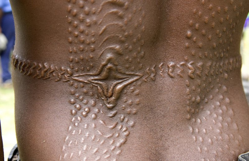 Crocodile scarification, Sepik region