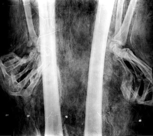 X-ray of upper-legs, showing clenched hands.