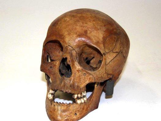 The skull of Lucretia Dunkley